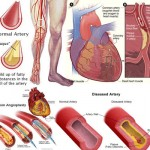 human-body-Artery-Disease