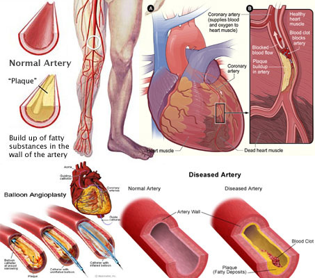 human-body-Artery-Disease