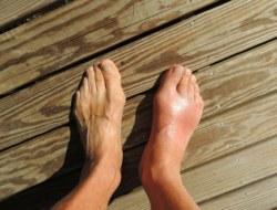 Gout and Cures: Test your Knowledge