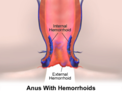 Quiz on Hemorrhoids